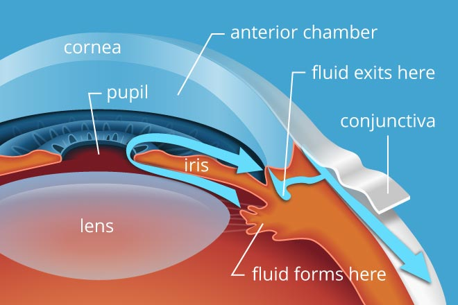 glaucoma is caused by, Glaucoma is Caused By Pressure in Eyes