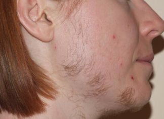 Excessive Facial Hairs