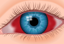 Eye Hemorrhage