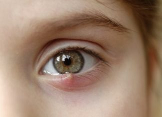 Dry Eyes, How To Cure Dry Eyes Permanently| Natural Treatments