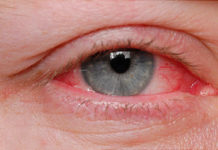 Eye Shingles, Everything You Need to know about Eye Shingles (Early Causes and Treatments)