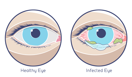 Person Become Contagious With Pink Eye
