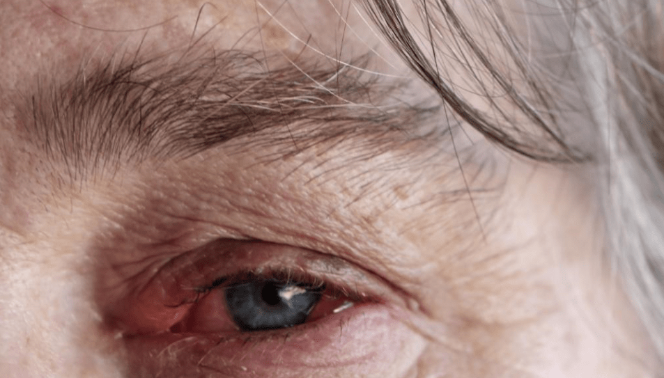 How Long Is a Person With Pink Eye Contagious