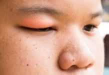 How To Avoid Swollen Eyelid
