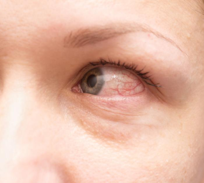 Avoid Swollen Eyelids, How To Avoid Swollen Eyelids