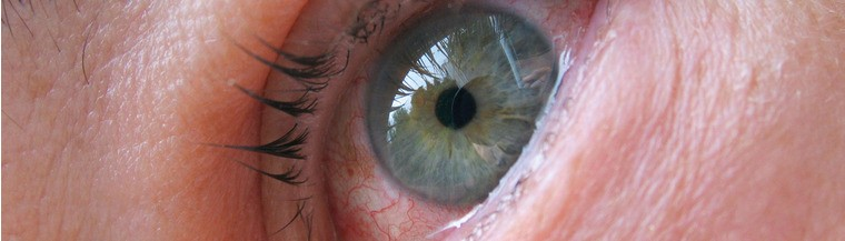Eye Infections, Kinds Of Eye Infections