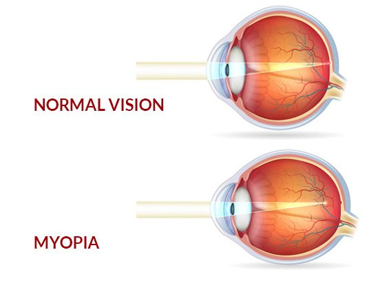 Myopia, Myopia Control And Prevention