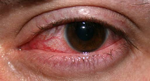Eye Problem, Top Causes Of Eye Problems