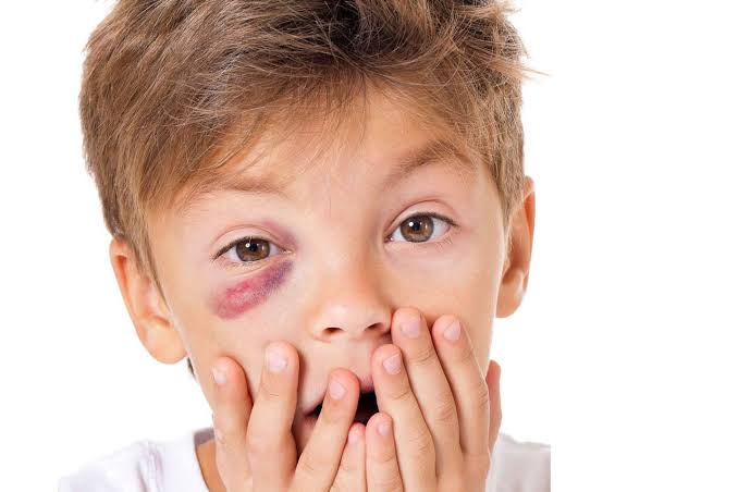 Eye Injuries, Eye Injuries In Children And How To Prevent Them