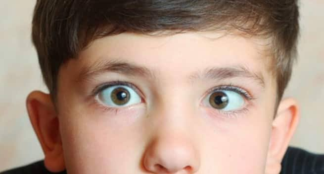 Eye Problem, Top Causes Of Eye Problems