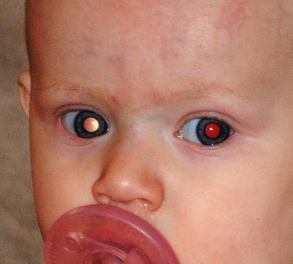Retinoblastoma, Retinoblastoma: Symptoms, Diagnosis And Treatment
