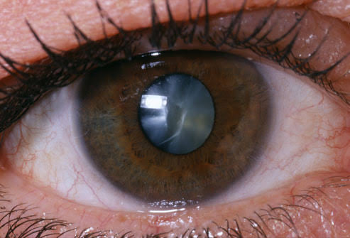 Ultraviolet Radiation, Ultraviolet Radiation And Your Eyes